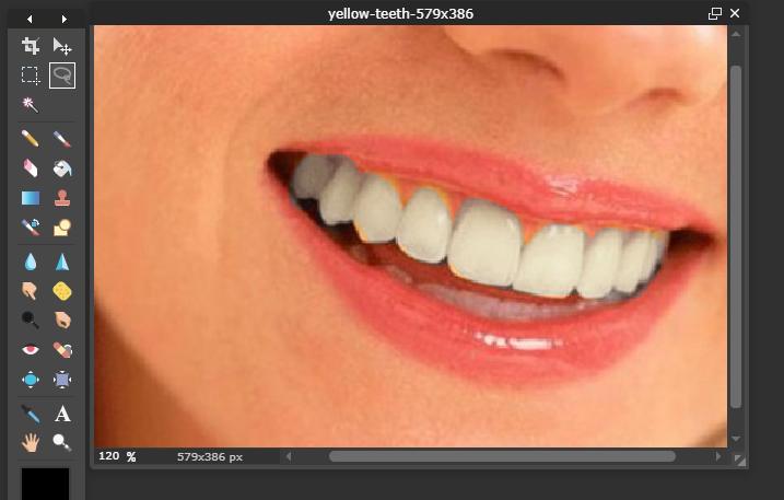 Cách làm trắng răng online